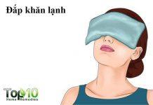 chữa mắt sưng húp