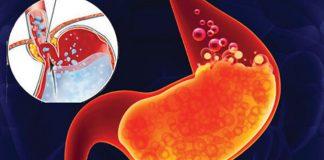 nguy cơ mắc bệnh dạ dày