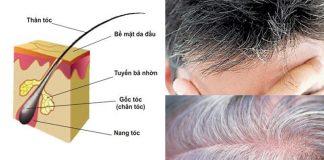 Mẹo trị bạc tóc ngay tại nhà
